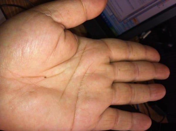 puntos rojos en el dorso de las manos