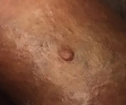 Granitos en el glande sin dolor