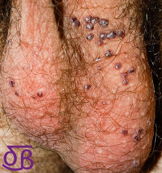Grano en el testiculo izquierdo