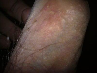 manchas en el tronco del pene