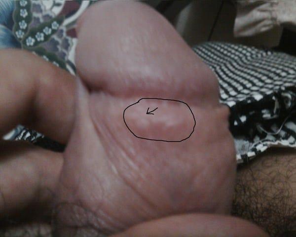 pequeñas pustulas linear unit el glande