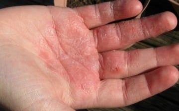 Manchas rojas en manos y pies