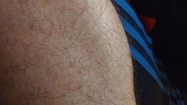 tengo unos bultos en las piernas