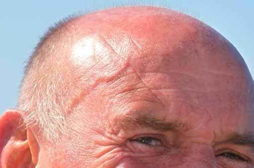 bola interna en el lobulo de la oreja