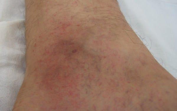Xq me salen manchas rojas en la piel