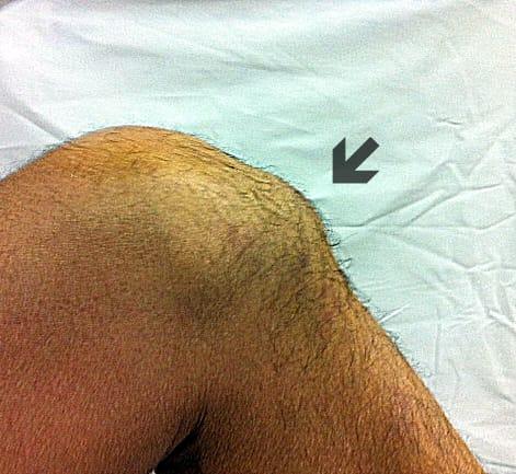 bulto en la rodilla hueso