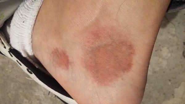 me salio una mancha negra en la una del pie