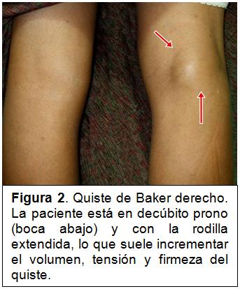 quiste sinovial rodilla anterior