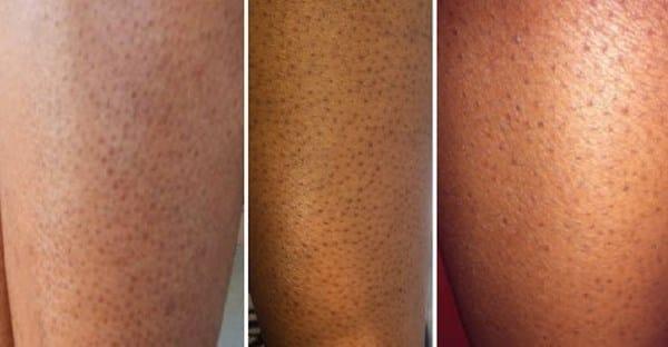 how to close pores fast