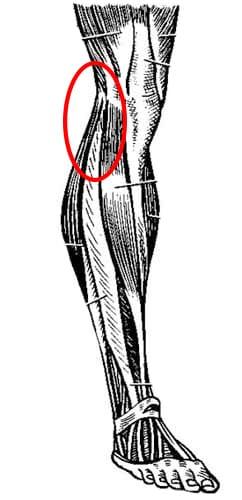 Dolor gemelo externo lesiones traum ticas - Dolor en la parte interior de la rodilla ...