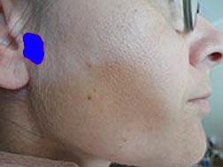 bultos en la cara barbilla