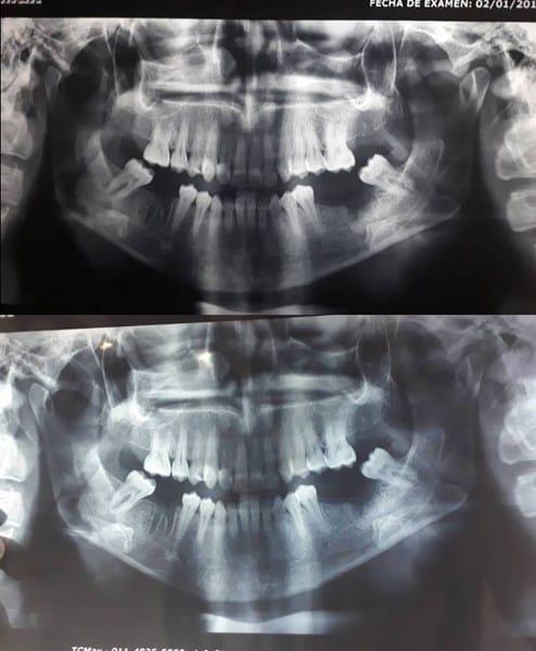 Infección de la mandíbula dolor de cabeza